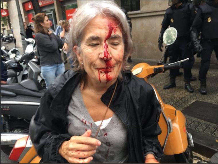 Une électrice blessée à Barcelone