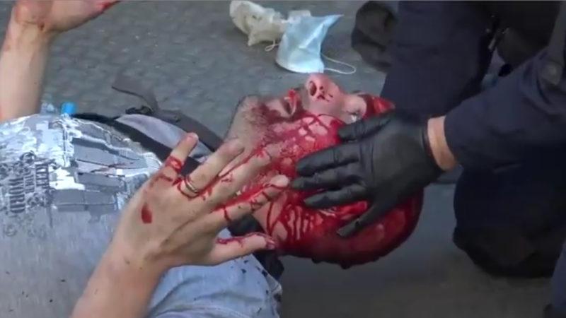 Vidéo : le déluge de sauvagerie policière qui précéda la réaction «suicidez-vous !»